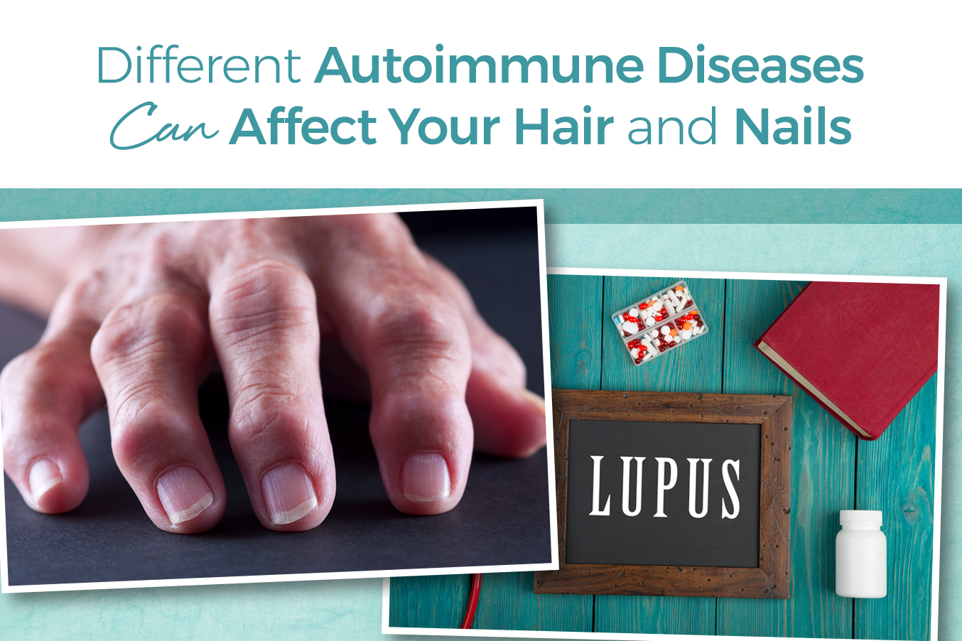 Autoimmune Disease Can Damage Skin Hair Nails
