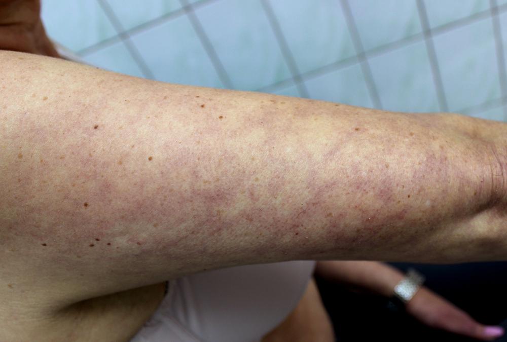 Skin Rashes COVID 19 Pandemic | Dr. Michael Steppie