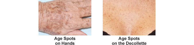 Image for age spots that we treat in our Orlando area centers