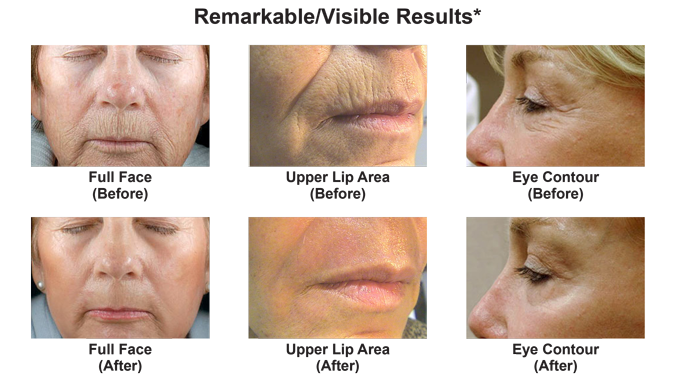 Dot Therapy Co2 Laser Skin Resurfacing Orlando