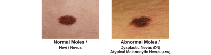 example of an ok mole and an abnormal more that may need to be removed