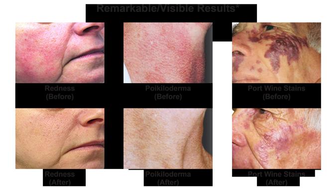 Vbeam Pulsed Dye Laser Skin Resurfacing Orlando Associates In Dermatology